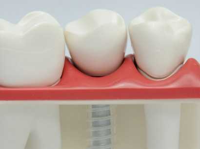 Implantate Zahnarzt Freising