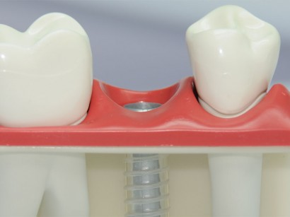 Implantate aus Keramik oder Titan Freising