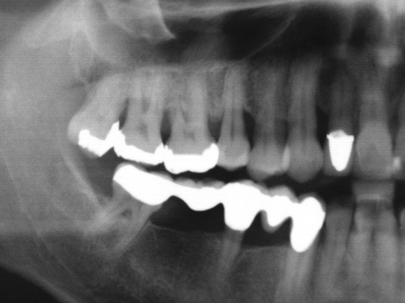 parodontose-roentgenbild.jpg