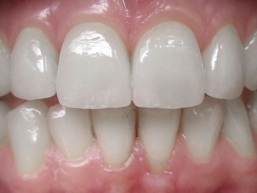 unsichtbare gemachte Zahnfehler