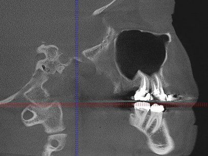 Wurzelfüllung Zahnarzt Dr. Weissenberger